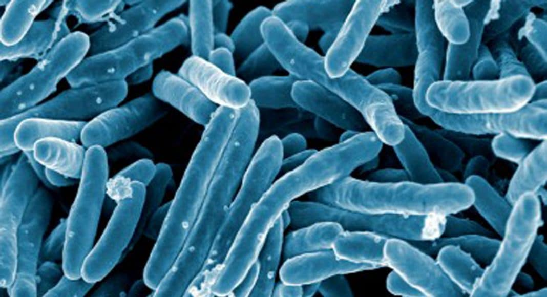 Tuberculosis is the world's deadliest infectious disease