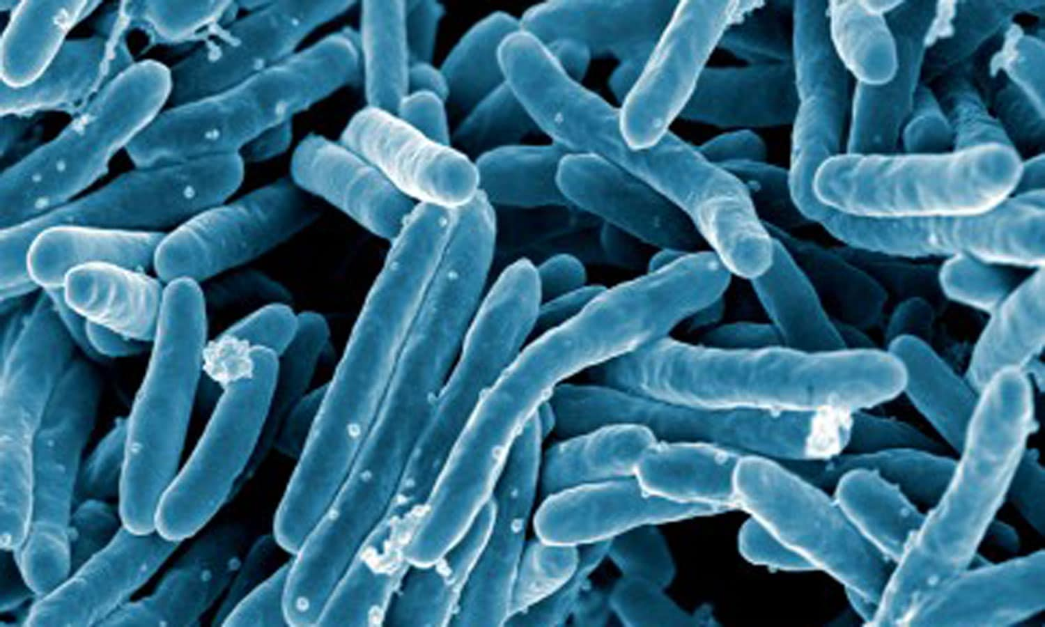 m tuberculosis The cell walls of mycobacterium tuberculosis are studded with  lipoarabinomannan glycans — sugars coupled to proteins, forming barriers that  are believed to.