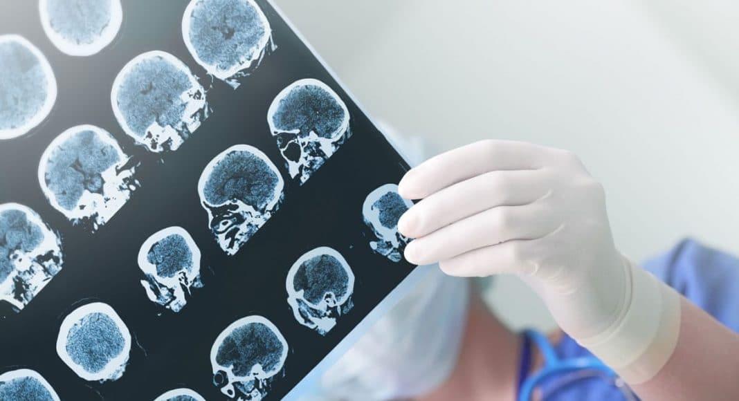 epilepsy and cannabis