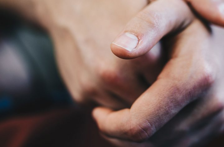 How Cannabis Can Help Those Who Suffer With Psoriasis