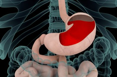 Can Cannabis Treat Gastroesophageal Reflux Disease (GERD)?