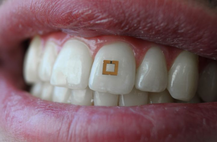This 'Smart Tooth' Can Track Everything You Eat