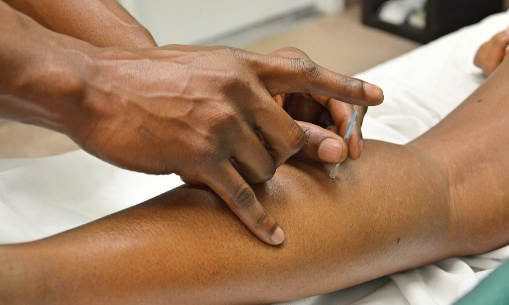 What Can You Expect At Your First Acupuncture Appointment