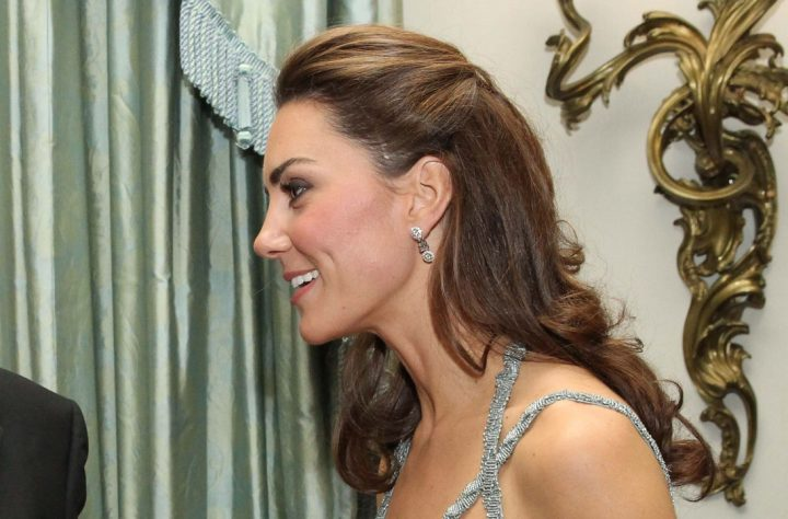 What's The Deal With The Huge Scar On Kate Middleton's Scalp?