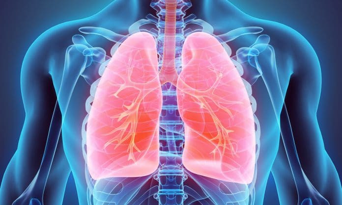 How Does Smoking Marijuana Affect Your Lungs Exactly?