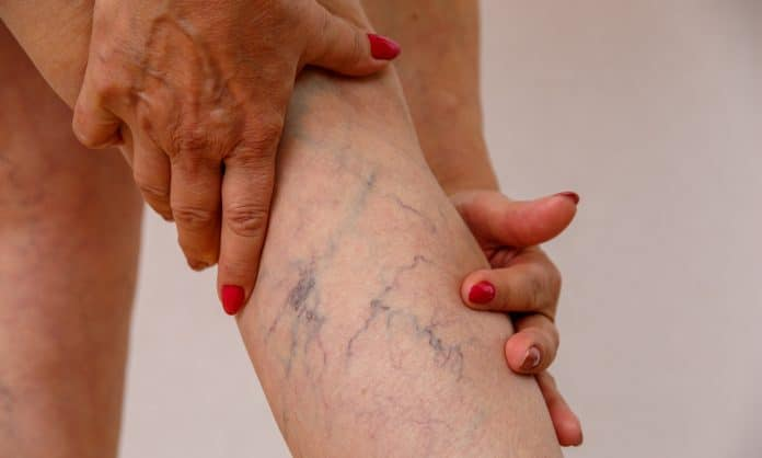 Here's What We Know About CBD's Effects On Varicose Veins