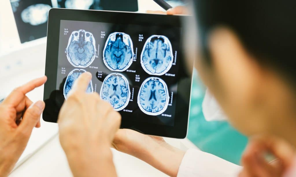 CBD Could Provide Useful Treatment in Rare Brain Cancer, Study Finds