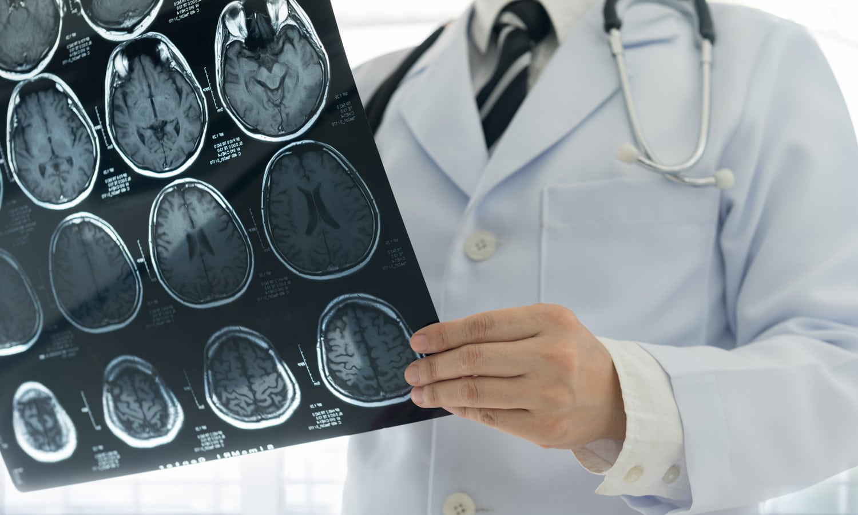No Evidence Marijuana Increases Stroke Risk, Study Finds
