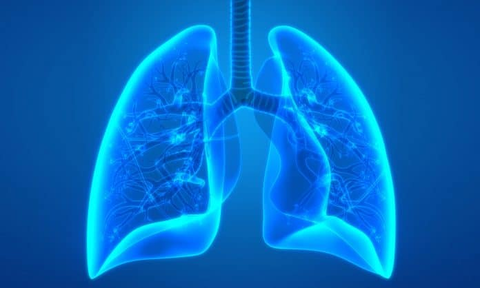 Cannabis Could Prevent Deadly Covid-19 Lung Inflammation