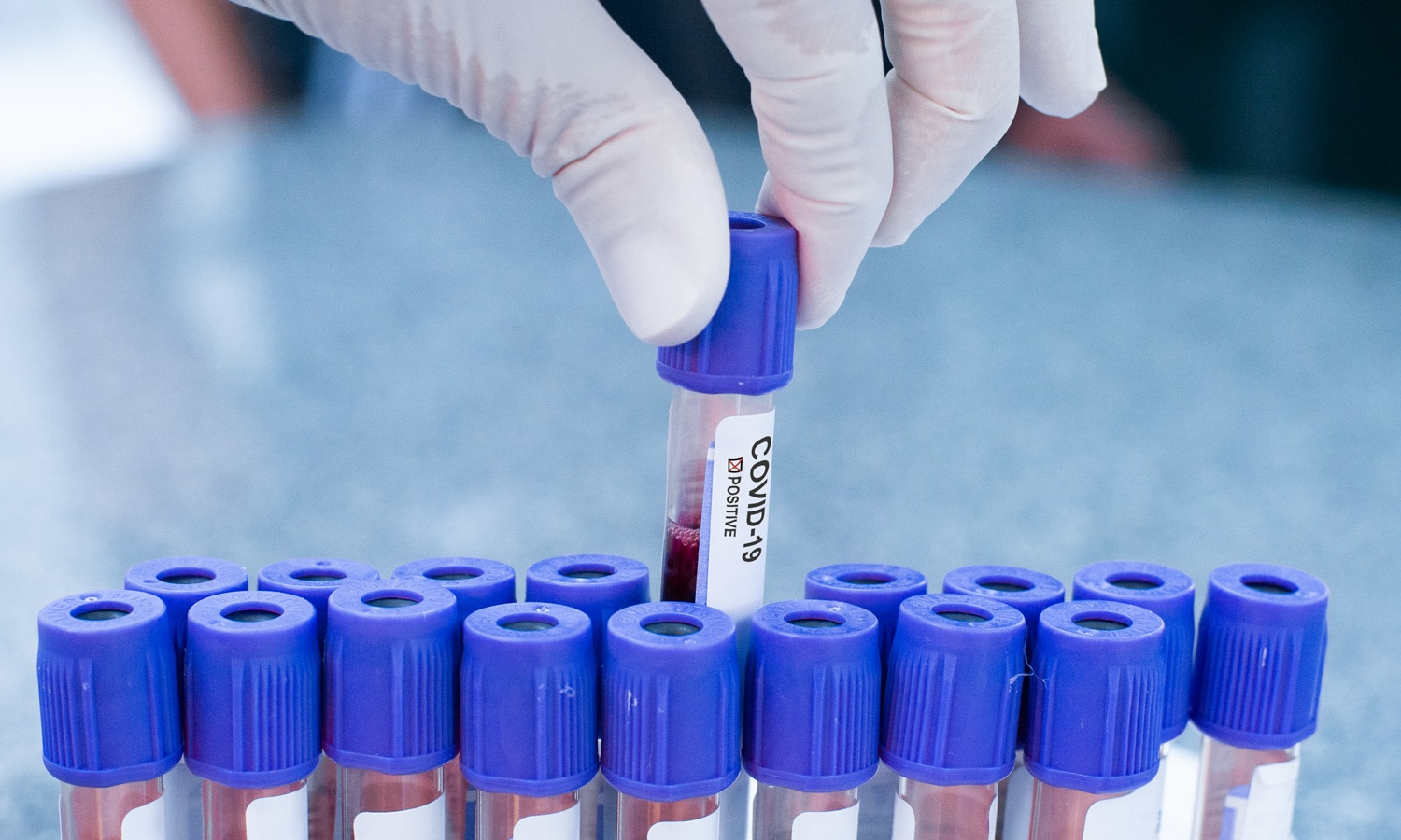 FDA Authorizes First Next Generation Sequencing Test For Diagnosing COVID-19