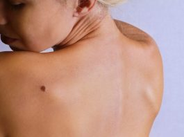 Top 10 Risk Factors Of Melanoma And How To Prevent It
