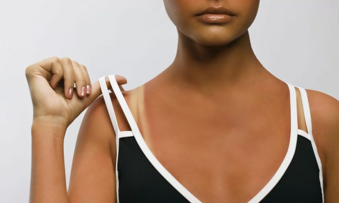 Does CBD Help With A Sunburn?