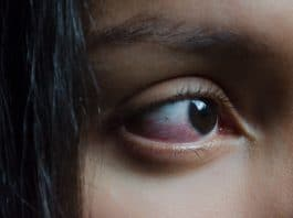 Why Does Smoking Weed Make Your Eyes Red?